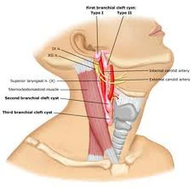 Sternocleidomastoid - Kinesiology of the Head and Neck